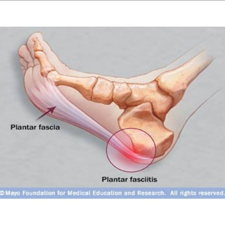 How I'm Treating My Plantar Fasciitis