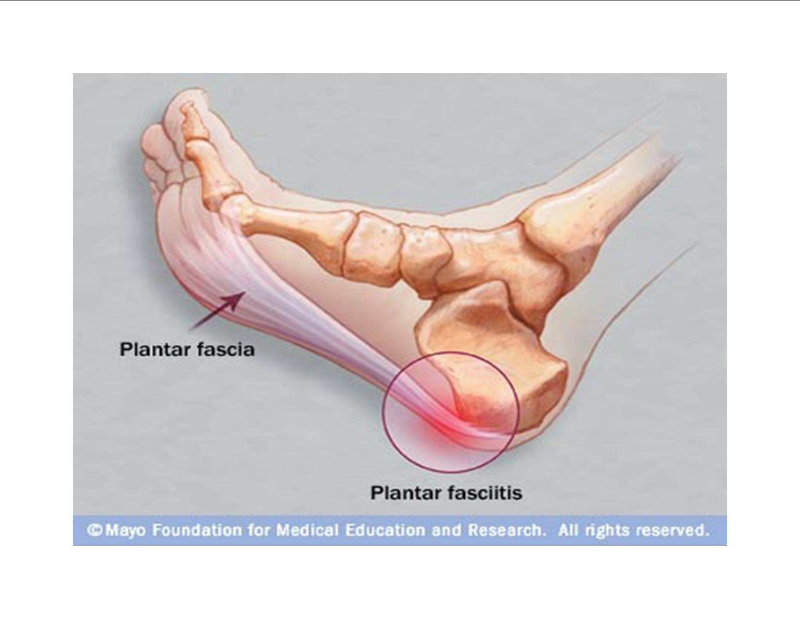 how i'm treating my plantar fasciitis, Skeleton